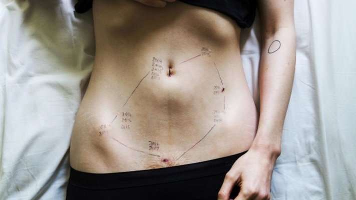 Endometriose atinge cerca de 10 milhões de brasileiras