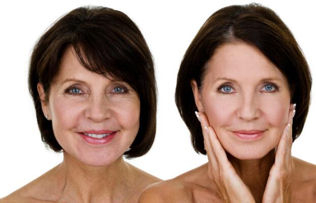 Idosos aderem à Cirurgia Plástica para melhorar a autoestima